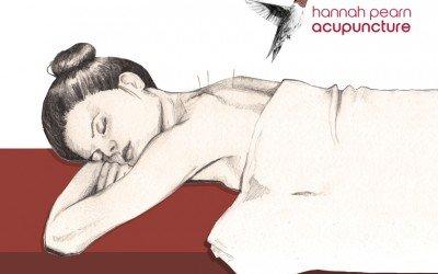 Hannah Pearn – Acupuncture